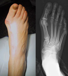 Example of a bunion and corresponding x-ray
