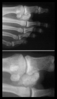 Examples of calcification in the joints of the foot requiring hand made shoes